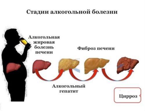 Стадии алкогольного гепатоза