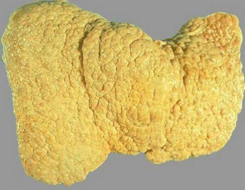 Жировая дистрофия пчечени