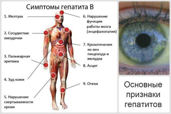 Основные симптомы и признаки гепатита В