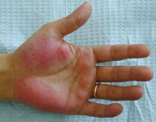 Эритема при гепатите