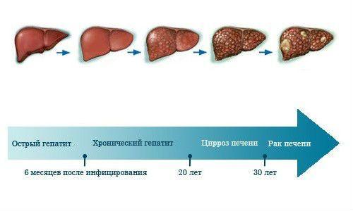 Заболевания печени