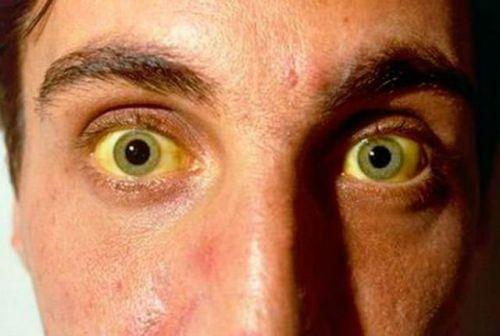 Желтушность глаз