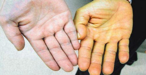 Лекарство от гепатита Б: препараты, прорыв в медицине