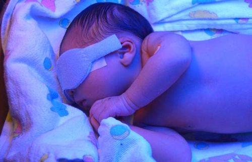 Фотолечение желтухи у новорожденного