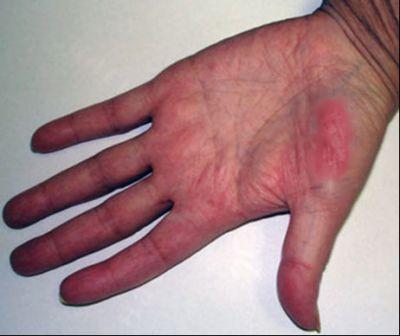 Красные ладони при циррозе