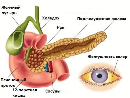 Механическая желтуха при раке поджелудочной