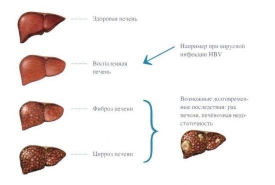 Осложнения гепатит В