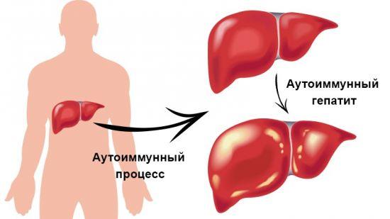 Аутоиммунный гепатит