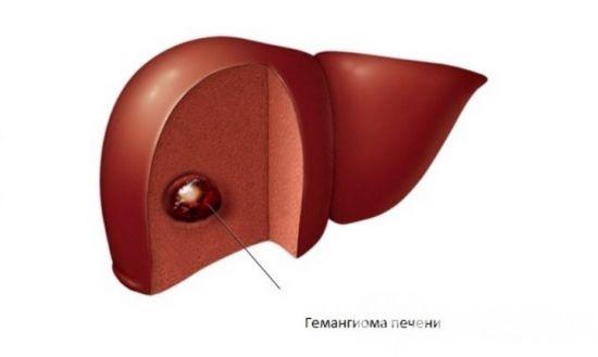 Опухоль печени
