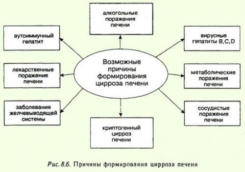 Причины цирроза печени