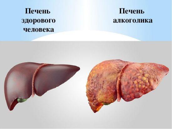Печень здорового человека и алкоголика