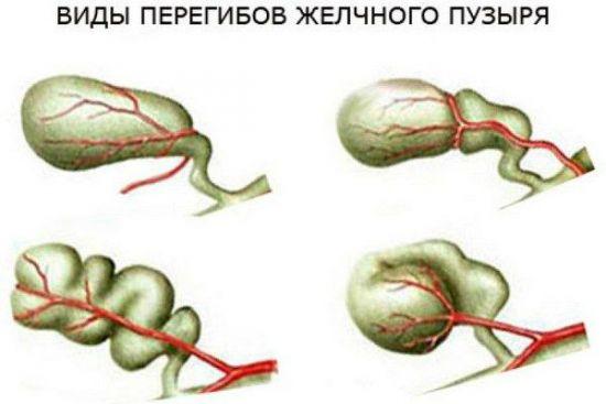 Виды перегиба желчного пузыря