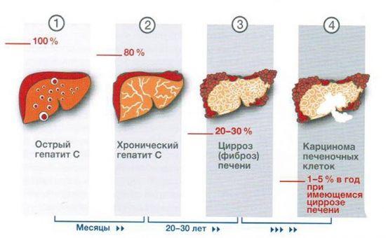 Последствия гепатита для печени