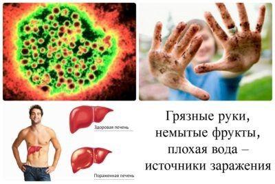 Пути заражения гепатитом А