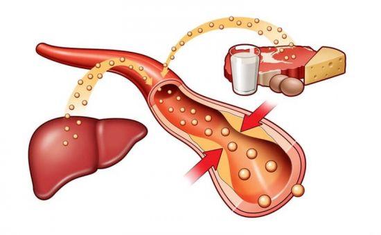 Холестерин и печень