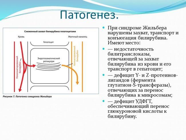 Патогенез синдрома Жильбера