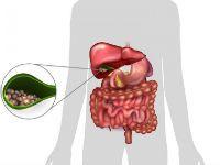 Диета при хроническом холецистите в период обострения