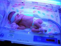 Фототерапия при желтухе новорожденных