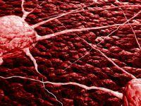 Метастазы в кишечнике: симптомы, прогноз срока жизни, лечение