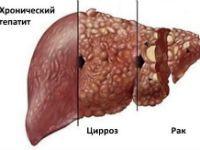 Цирроз и рак печени